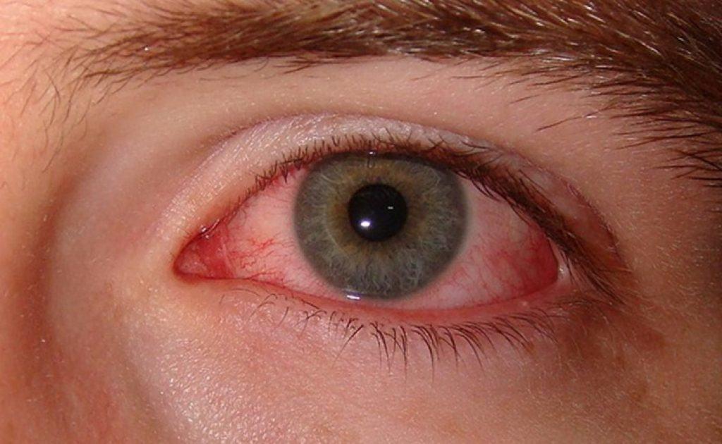 อาการตาแห้ง